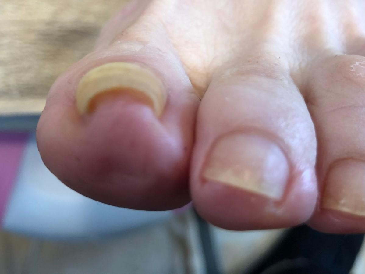 痛くない・目立たない巻き爪のサロン矯正